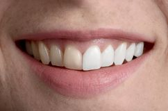 Sorriso bonito, higiene dental antes ou depois de fotografia de stock royalty free