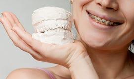 Sorriso con il modello della mascella dell'intonaco & della parentesi immagini stock