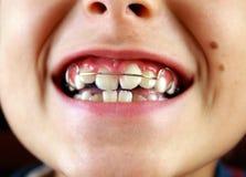 Sorriso con le parentesi graffe sui denti Immagine Stock