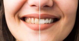 Sorriso da mulher antes e depois do descoramento imagens de stock royalty free