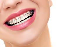 Sorriso da mulher com as cintas claras ortodônticas nos dentes fotografia de stock