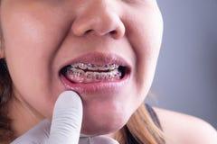 Sorriso da mulher que mostra seus dentes fotos de stock