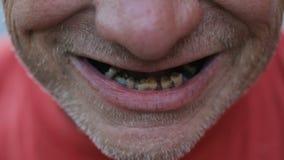 Sorriso dell'uomo senza tetto archivi video