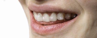 Sorriso feliz da jovem mulher com o alinhador dental das cintas imagem de stock royalty free