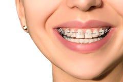 Sorriso femminile dei denti dentari ceramici dei ganci Immagini Stock Libere da Diritti