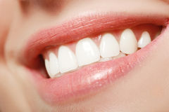 Sorriso Toothy Fotografie Stock