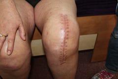 Sostituzione totale del ginocchio, chirurgia del ginocchio Fotografie Stock Libere da Diritti
