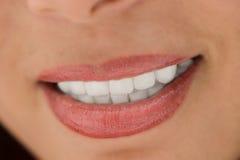 Sourire avec les dents blanches photographie stock