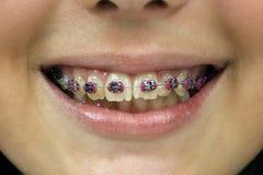 Sourire d'une jeune femme avec des dentiers Image stock