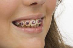 Sourire d'une jeune femme avec des dentiers Photo stock