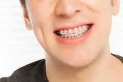 Sourire heureux du ` s d'homme avec des cas orthodontiques Image stock
