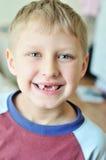 Sourire sans dents photo stock