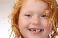 Spacco del dente immagini stock libere da diritti