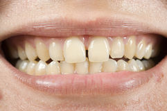 Spacing Teeth. Oral problem, photo for teeth problem Royalty Free Stock Image