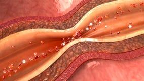 Spasme d'artère images stock