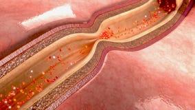 Spasme d'artère coronaire illustration libre de droits