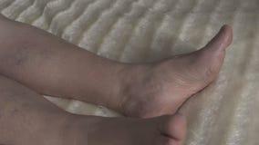 Spataders en thrombophlebitis in de benen van een vrouw, close-up, omloop, trombose stock footage