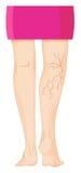 Spataders op menselijke benen royalty-vrije illustratie