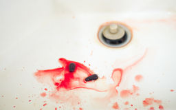 Spattering of blood Stock Images