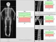 Special exam results bone density.too blurriness and artifacting image vector illustration