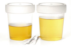 Specimen cups for urinalysis. With test stripes isolated on white background Stock Photo