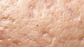 Spherical cystic acne on the skin