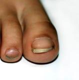 Spikar på foten som är smutsig Ingrown tånaglar Smutsiga fingernaglar för svart royaltyfria bilder