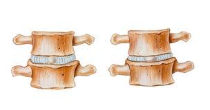 Spina dorsale - attenuare funzione dei dischi intervertebrali immagini stock