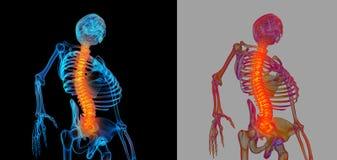 Spina dorsale dolorosa Fotografie Stock Libere da Diritti