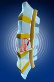 Spina dorsale, midollo, fratture traumatiche vertebrali Immagini Stock Libere da Diritti