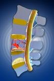 Spina dorsale, midollo, fratture traumatiche vertebrali Immagini Stock