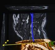 Spina dorsale, risonanza magnetica del tensore di diffusione Fotografia Stock Libera da Diritti