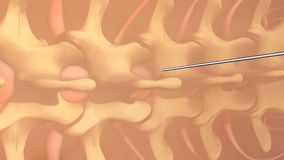 Spinal Anaesthesia Stock Image