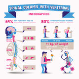 Spinal Column Infographics. Stock Photography