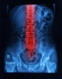 Spinal column x-ray image. Of human Stock Photo