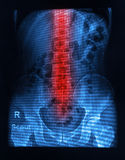 Spinal column x-ray image Stock Photo