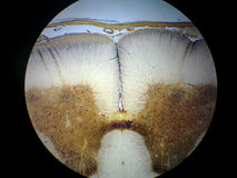 Spinal cord cross section Stock Photo