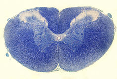 Spinal cord. Luxol Fast Blue stain royalty free stock images