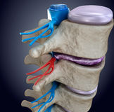 Spinal cord under pressure of bulging disc. 3d image stock illustration