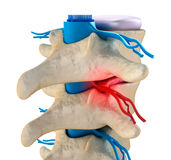 Spinal cord under pressure of bulging disc. 3d render royalty free illustration