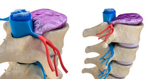 Spinal cord under pressure of bulging disc Stock Images