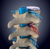 Spinal cord under pressure of bulging disc Royalty Free Stock Photography