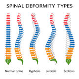Spinal deformity types. Illustration of spinal deformity types. Kyphosis, lordosis and scoliosis Royalty Free Stock Photos