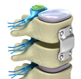 Spinal fixation system - titanium bracket Royalty Free Stock Images