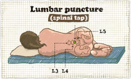 Spinal Lumbar Puncture Illustration on old Paper Royalty Free Stock Photos