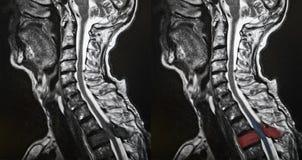 Spinal metastasis Stock Photography