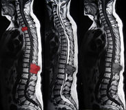 Spinal metastatic tumor, MRI Royalty Free Stock Images