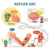 Spinal Reflex Arc scheme, vector illustration, with stimulus pathway through the nerve signals. Fun cartoon characters. Spinal Reflex Arc scheme, vector Stock Photos