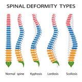 Spinale Missbildungsarten lizenzfreie abbildung
