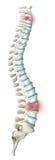 Spine back pain diagram Stock Image